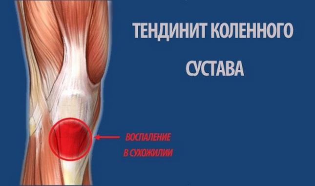a térd belső ligamentumainak károsodása)