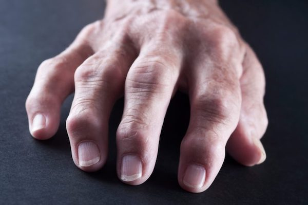 tömörítse össze dimexiddal ízületi fájdalmak esetén csípőízületi fájdalom becsípődött