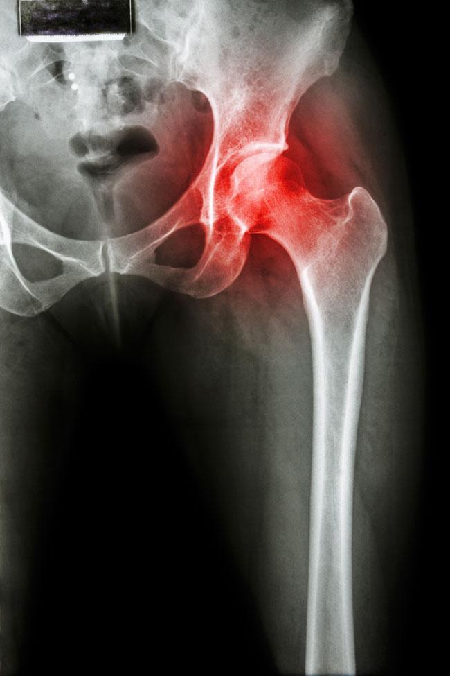 éles fájdalmak a csípő területén