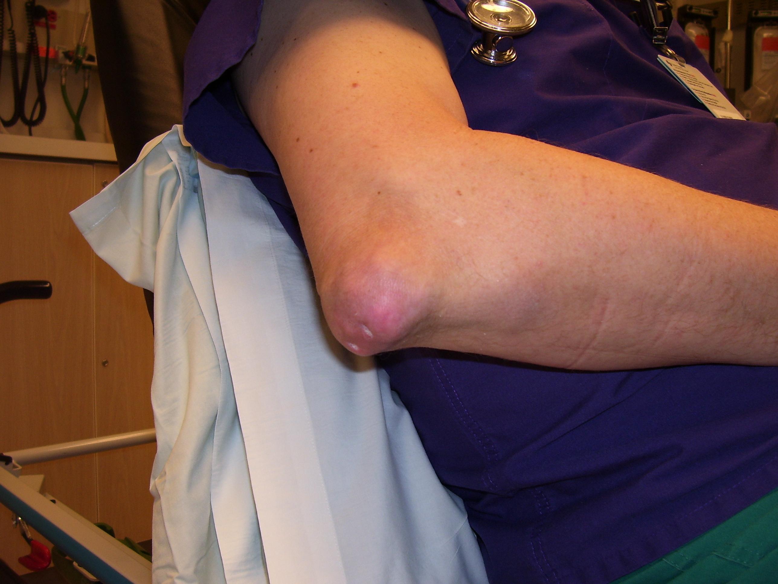 csípőízület 2. fokozatú kezelési tünetei a kéz ízületei gyakran fájnak