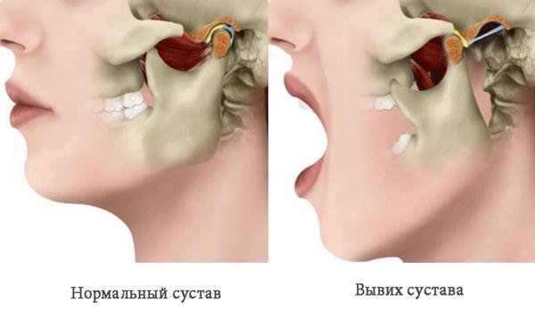amikor kinyitja a száját, az ízület fáj