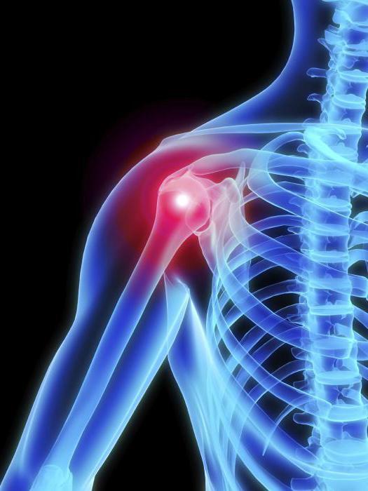 artrózis tünetei és a vállízület kezelése