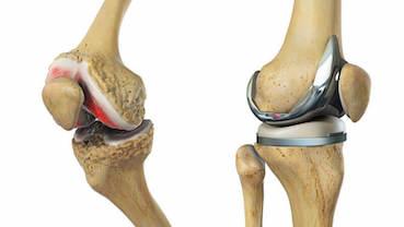 az artrózis egy csípő