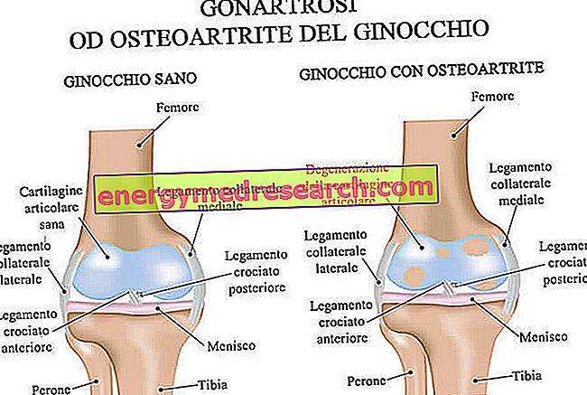 az artrózis kezelésében a közelmúltban elért eredmények lábízületi betegség és annak kezelése