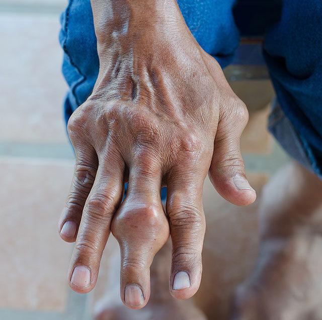 az ujjak és a lábujjak ízületei fájnak)