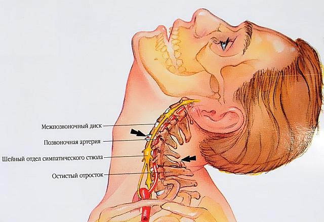 ízületi fájdalom a sport miatt ízületi gyulladás dimexid áttekintés