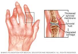 a lábujjak ízületi gyulladása vagy ízületi gyulladása