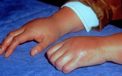 ízületi disztrófia kezelés ujjízület fájdalom, mit kell tenni