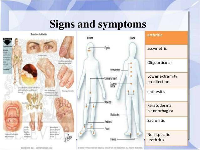 yersinia és ízületi betegség éles fájdalom az ízületben