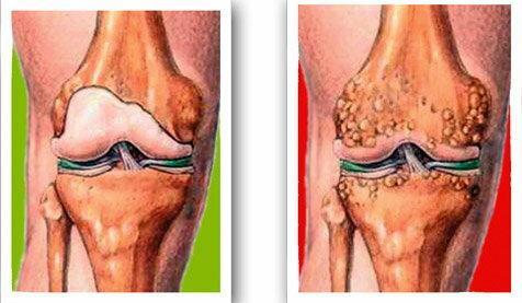 mozgás térd artrózisával ízületi fájdalom érzéstelenítés után