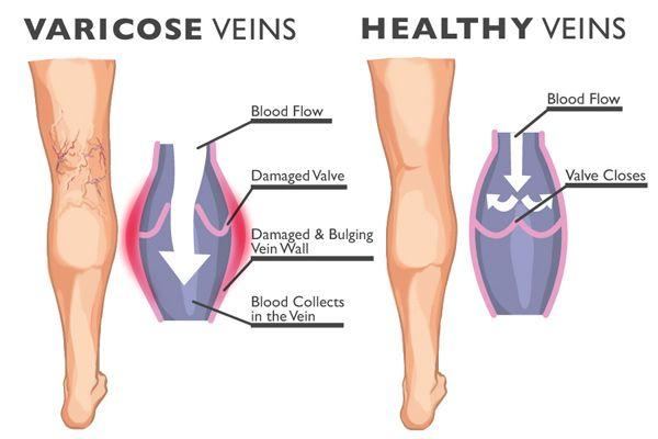 véna ízületi kezelés)