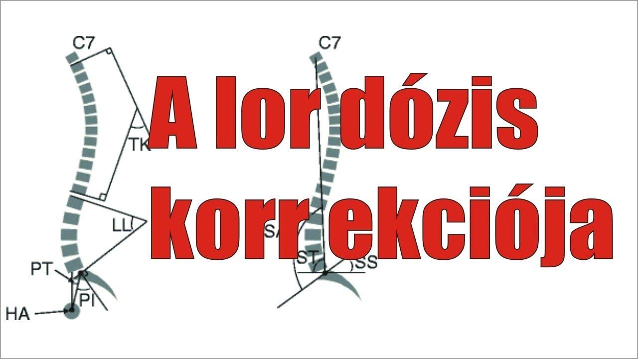 csípőízületi kezelés melyik glükozamin-kondroitin-t jobb megvásárolni
