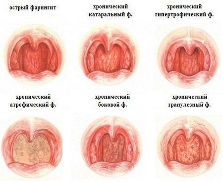 sarokgyulladás tünetei)