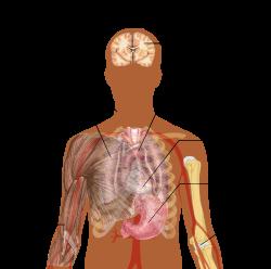 tüdőgyulladás ízületi fájdalom)