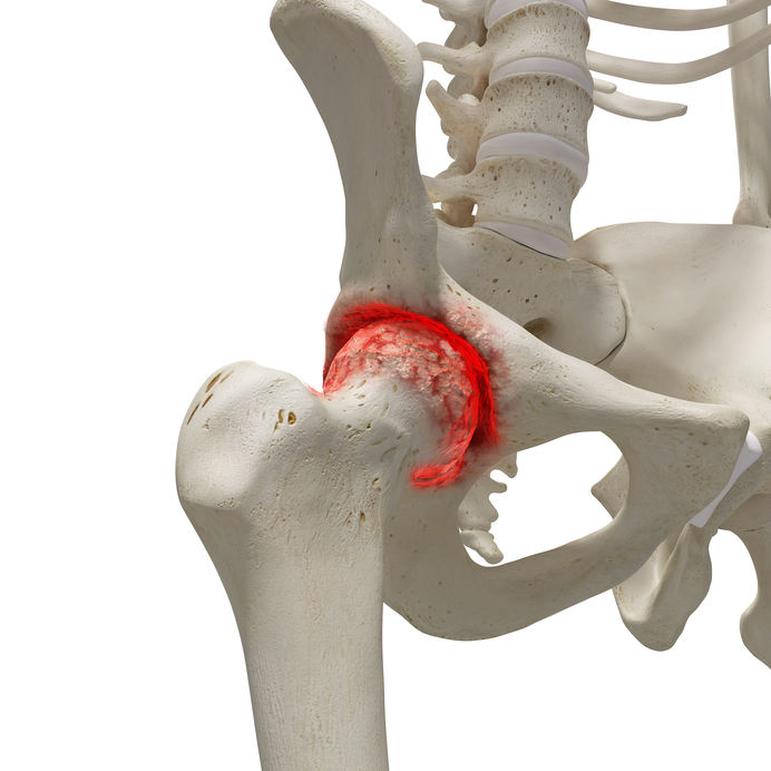 terápiás gyakorlatok a csípőízület artrózisának kezelésére