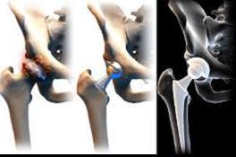 eszközök a csípőízület artrózisának kezelésére