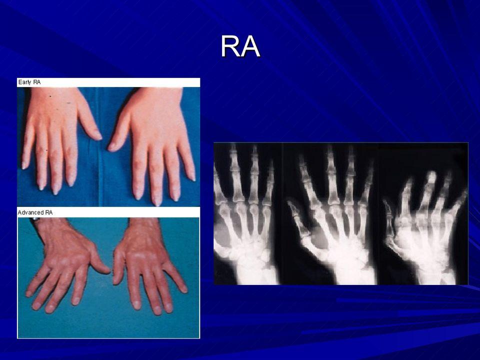 a könyökízület reumatoid artritisz kezelése legjobb tabletták ízületi fájdalmakhoz