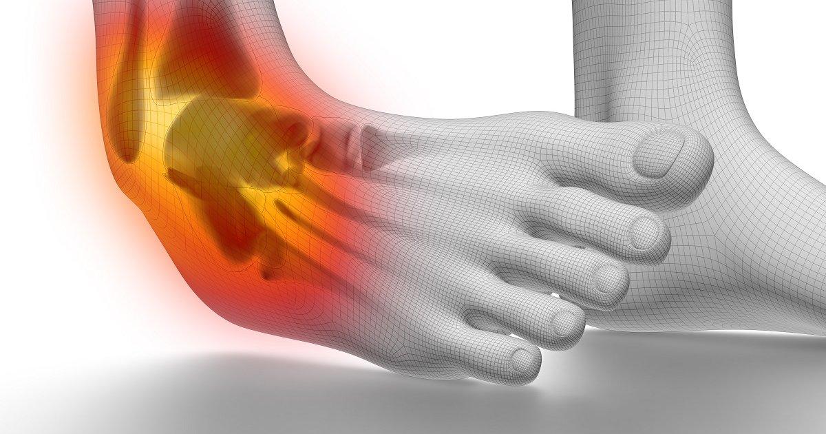 boka éles fájdalma járás közben