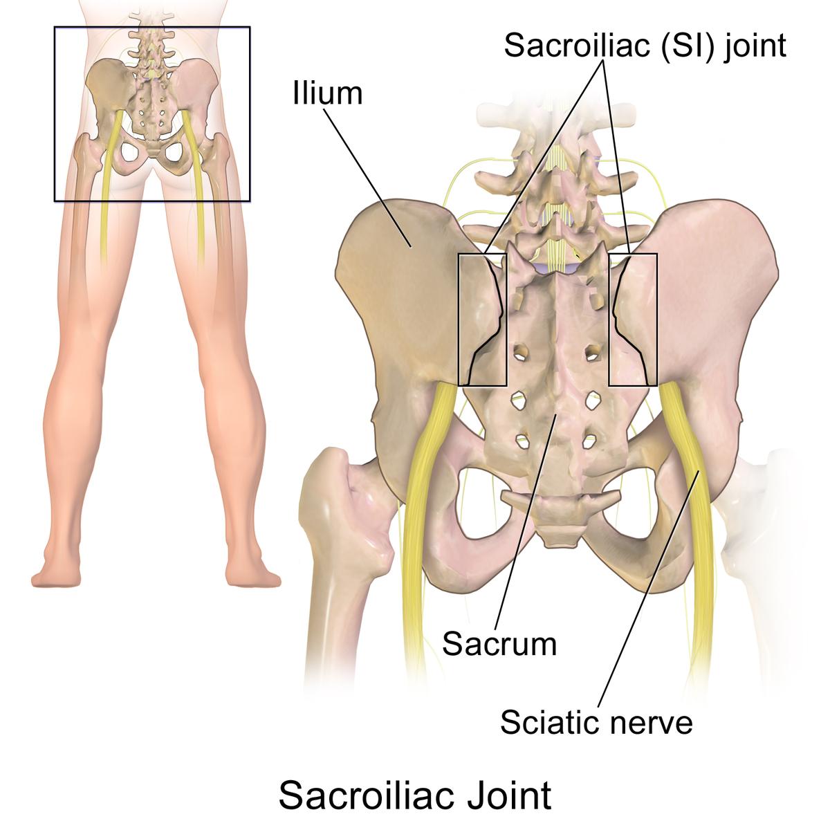 sacrococcygealis artrosis kezelése