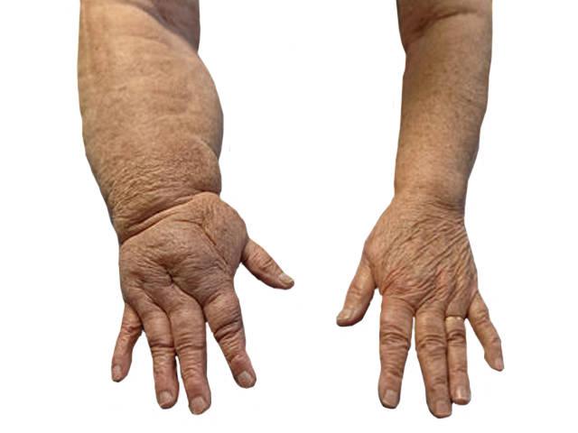 Az ödémás láb kezelése - HáziPatika
