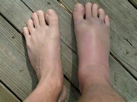 deformáló poszttraumás artrózis a boka