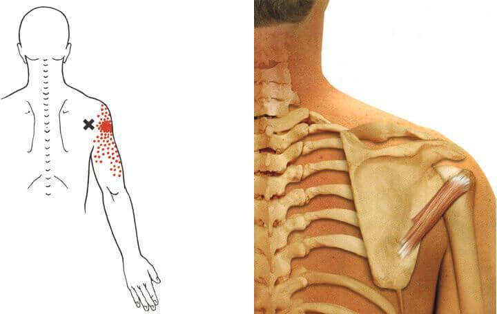 a deformáló artrózis standard kezelése