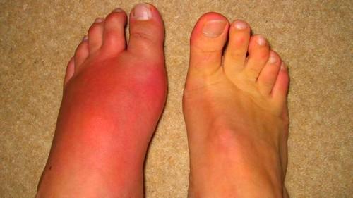 fájdalom és a nagy lábujj ízületének gyulladása
