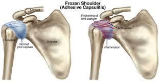 a vállízület mozgásának korlátozása sérülés után kezdődő reumatoid arthritis tünetei