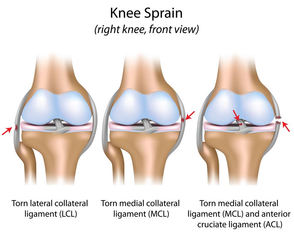 térd ligamentum sérülések kezelése a csípőízület fájdalmas éjszakai fájdalmai