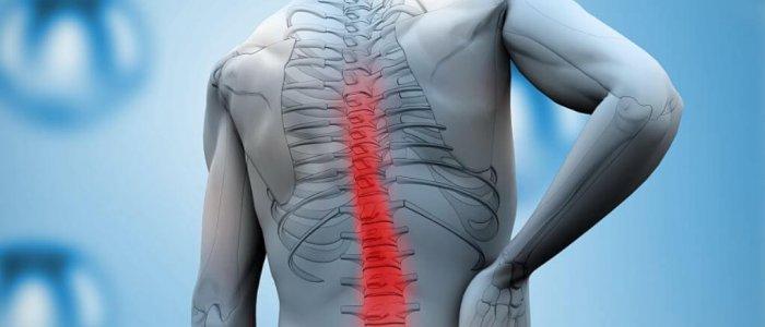 a vállízület kezelése spondylosis