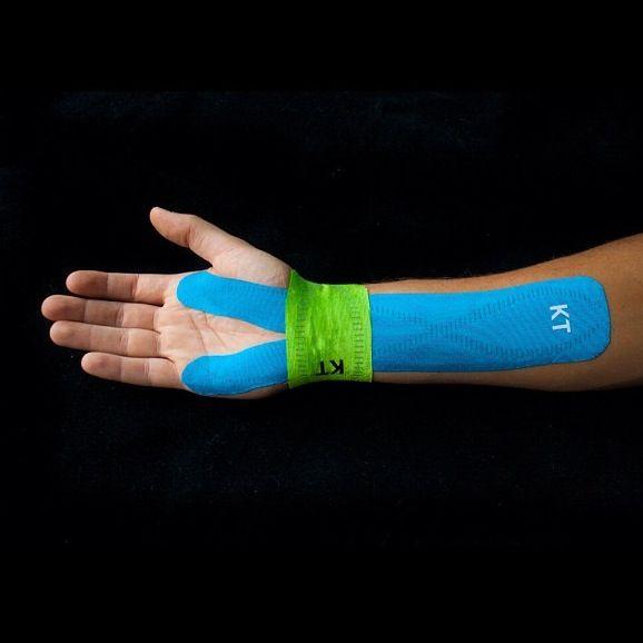 carpal sprain kezelés)