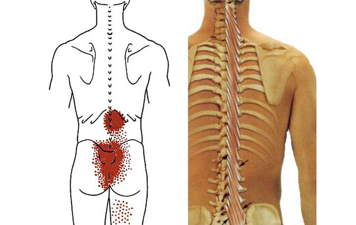 Az ágyék gerincének blokkolása: jelzések és mellékhatások