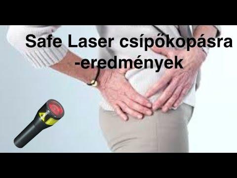 csípőfájdalom, amelyet az orvos kezel)