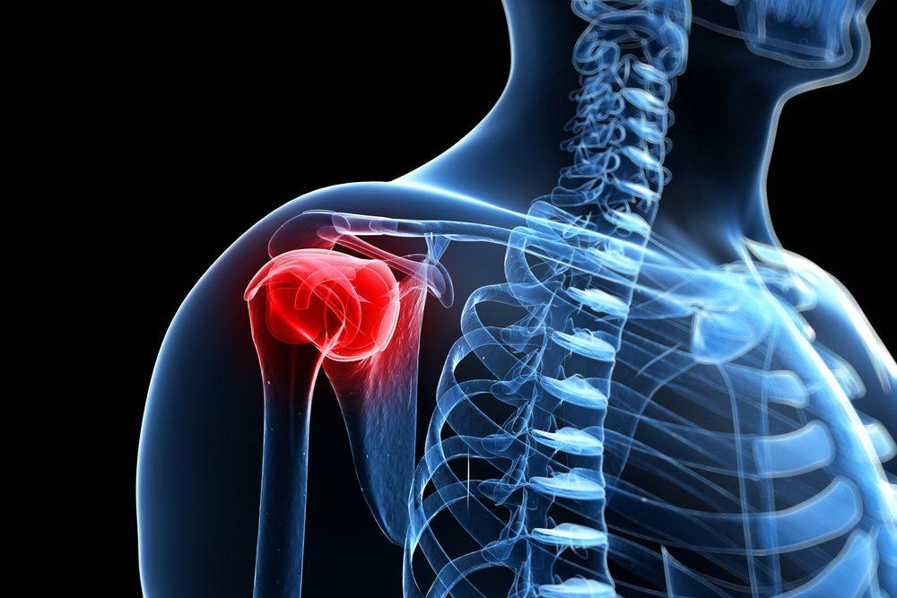 nyaki fájdalom a vállízületben