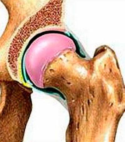hogyan nyilvánul meg a vállízület artrózisa