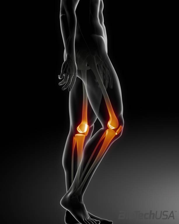 Térd sérülések gyakorisága. Térdfájás 13 oka, 4 tünete, 8 kezelési módja [teljes tudásanyag]