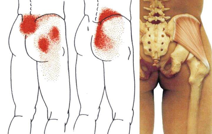 cerebrovaszkuláris baleset nyaki osteochondrozis gyógyszerekkel ízületi betegségek, hogyan kell kezelni