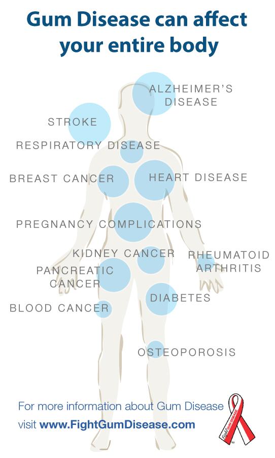 chladimiosis és ízületi fájdalmak)