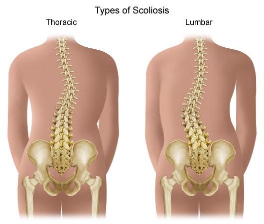 Coxarthrosis - a csípőízület artrózisa