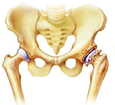 csípő csípőízület fájdalom