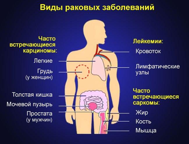 csípőízületek onkológiai betegségei)