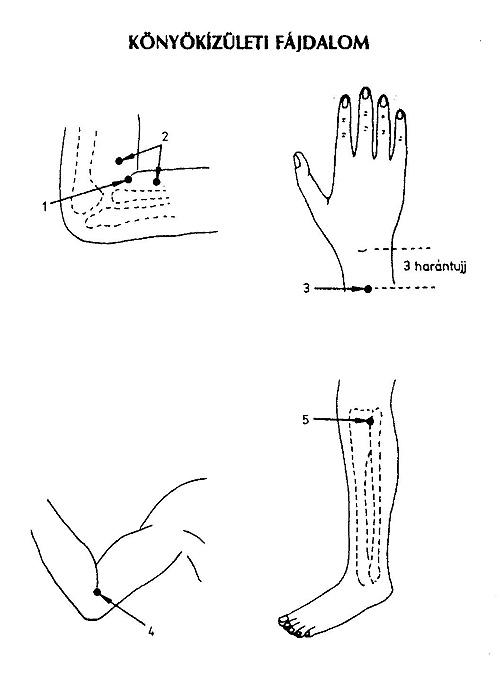 A könyökízület bursitise kezelése dimexiddel: a könyökre tömörül