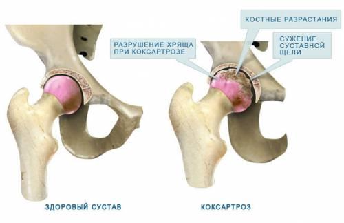 rákattint és fáj a csípőízület)