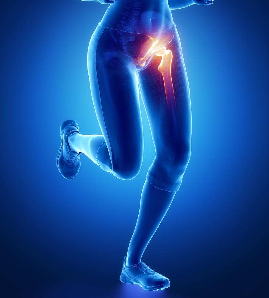 milyen fájdalmak vannak a csípőízületekben
