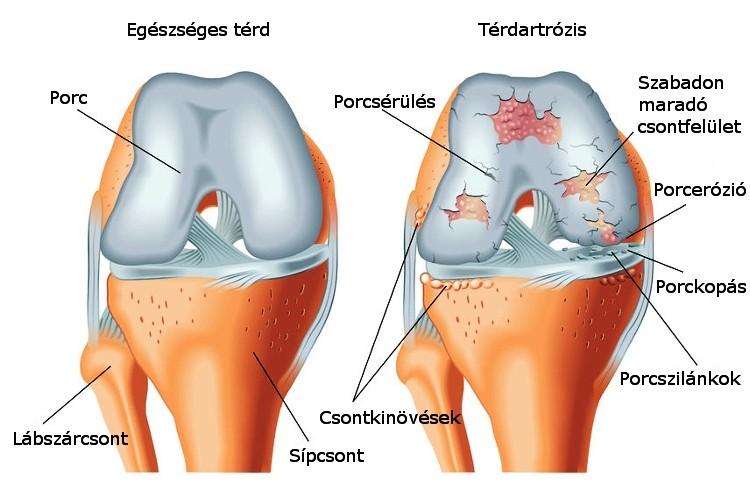 artrózis kezelési rendjei