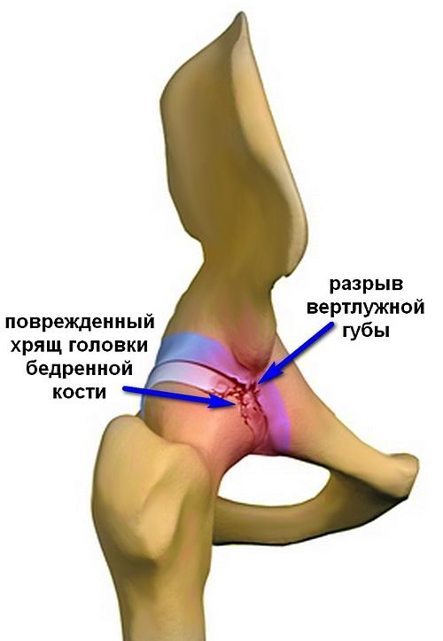 bal oldalon a csípőízület akut fájdalma