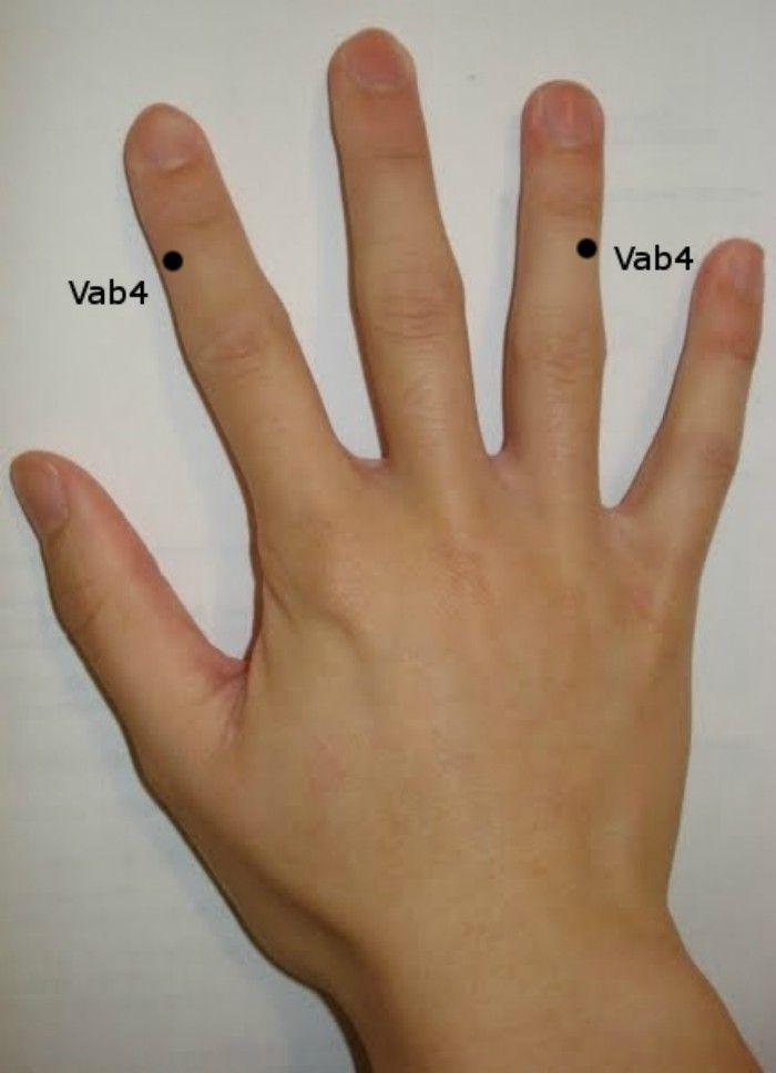 Kis baj, nagy kellemetlenség – a pattanó ujj