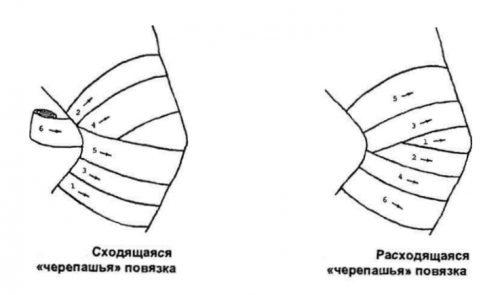 vitaminkészítmények ízületi fájdalmakhoz)