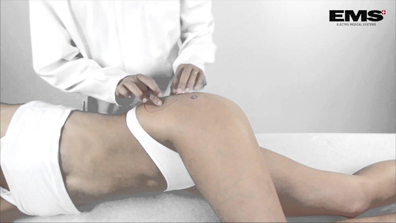 fájó csípőízület