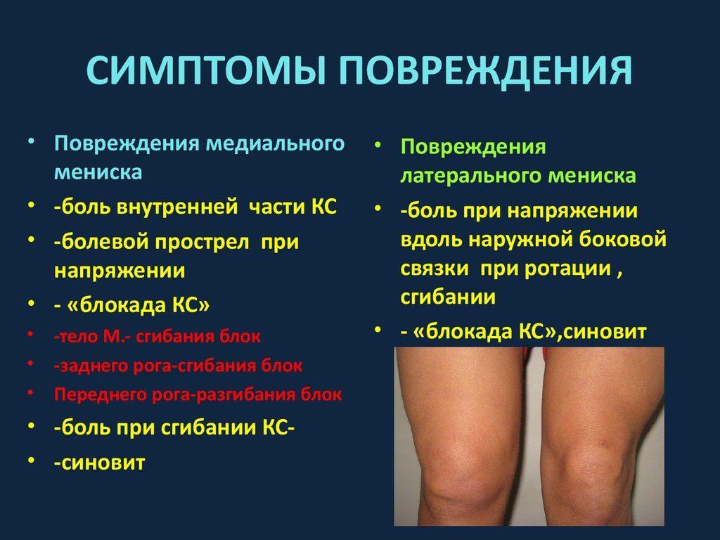 kenőcsök a térdízület meniszkuszának törésére nem deformált boka artritisz